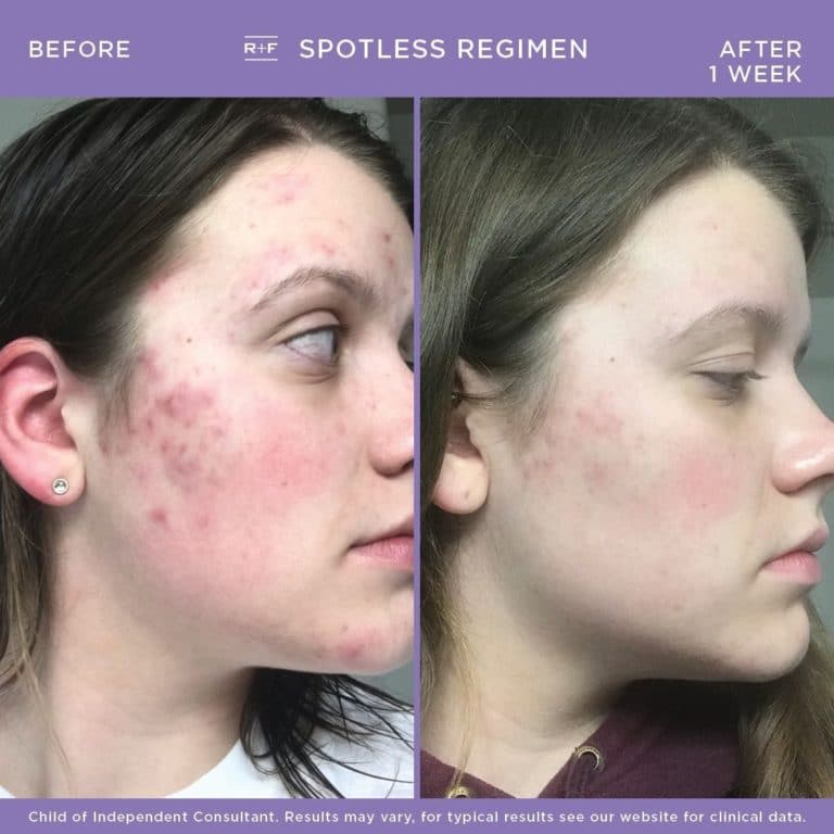 Teen Acne Face Mapping