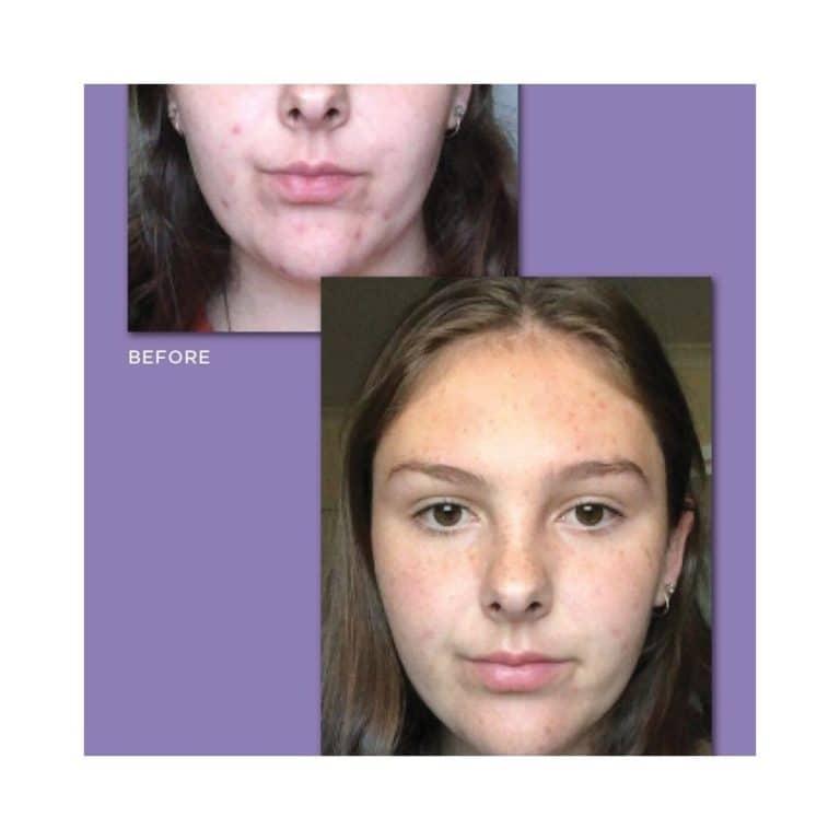 Skincare Consultant